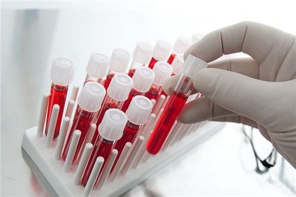 Власти Москвы отказали влечении иногородним ВИЧ-инфицированным пациентам
